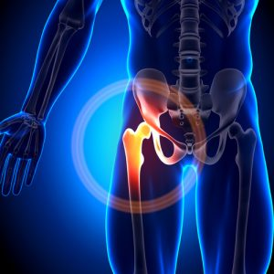 Hip Replacement attorneys