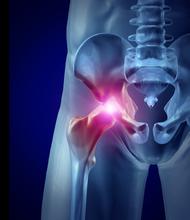 lesión de cadera